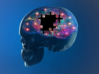 Answering 5 Frequently Asked Questions about Alzheimer's in Dallas, TX